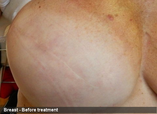 Breast 2 - Before treatment