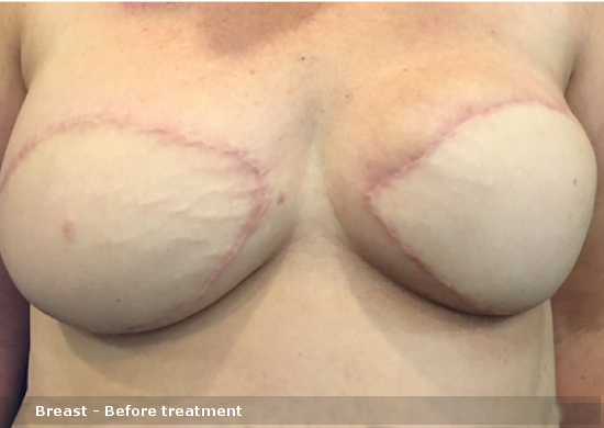 Breast - Before treatment