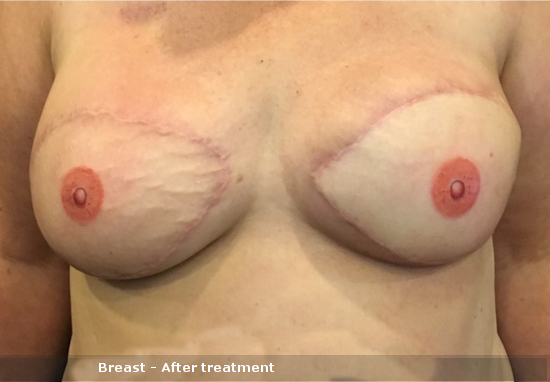 Breast - After treatment
